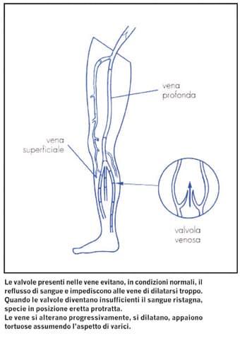 Varicosity su una gamba una puntura